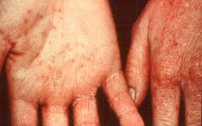 contact dermatitis on the hands